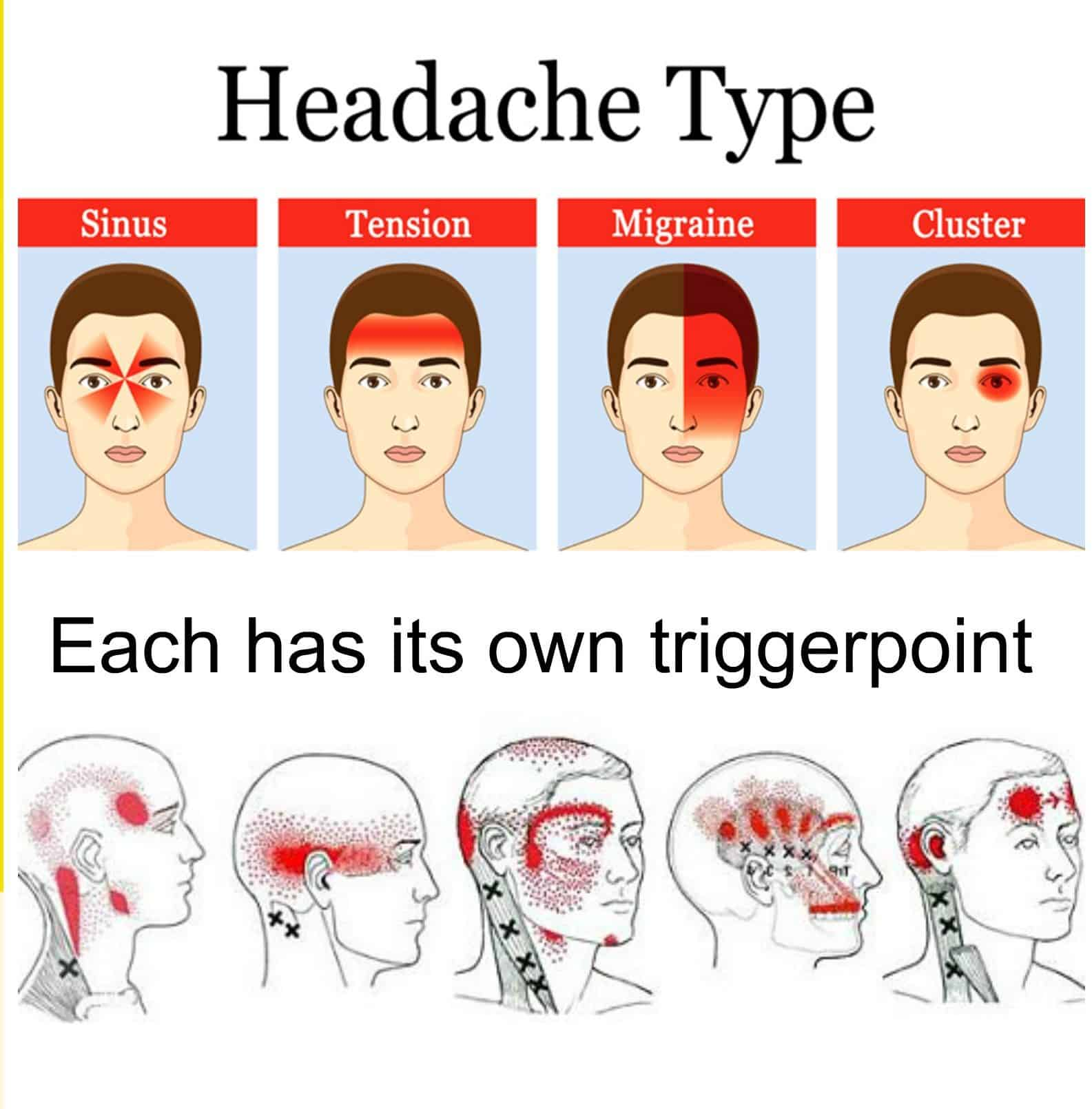 Differences In Clinical Features Of Cluster Headache Between Drinkers And Nondrinkers In Japan